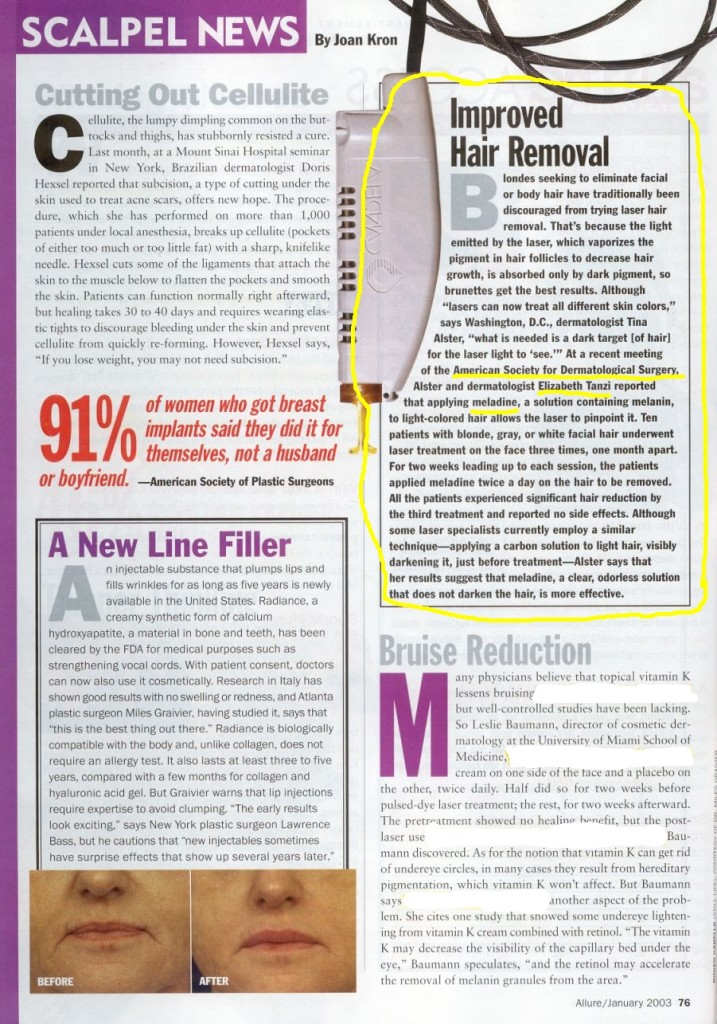 Allure Magazine article improved hair removal Meladine Janaury 2003