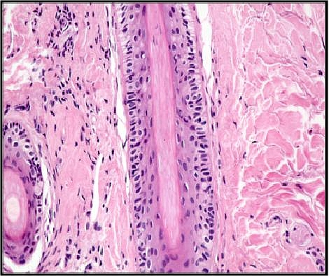 hair follicle histology melanin Meladine