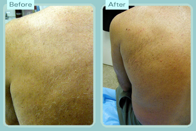 back laser hair removal Meladine light hair