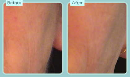 cheek laser hair removal Meladine light hair